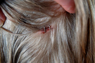 Staples in the head2008-12-27